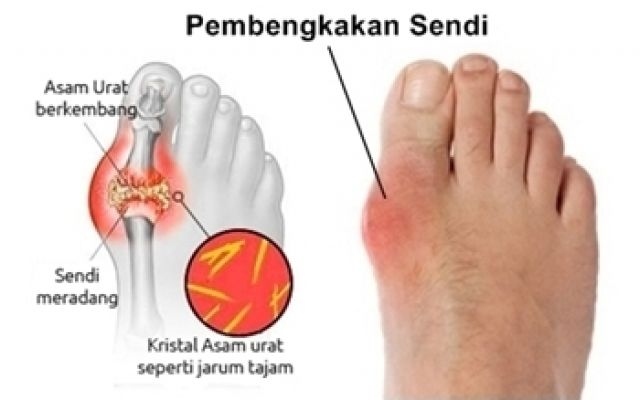 fruits and vegetables to lower uric acid best remedies for gout pain can you get gout in your hip joints