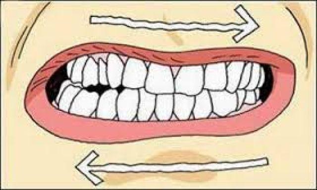 Почему человек во сне сильно сжимает зубы 109